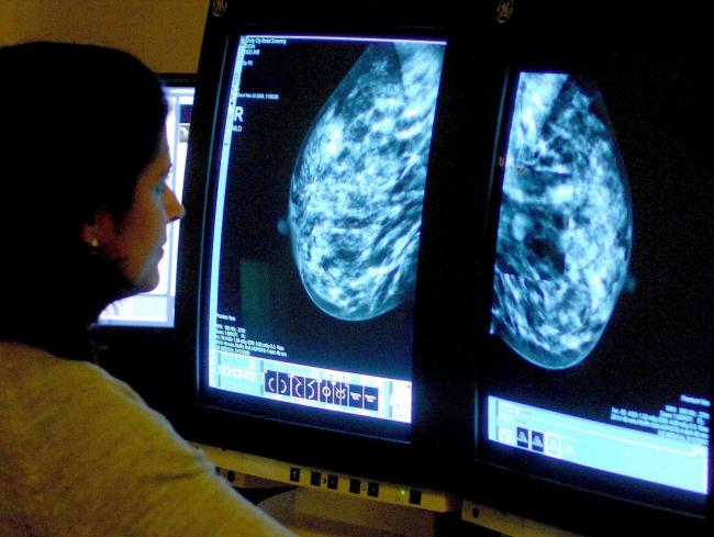 DEATH RATES: Deaths from breast cancer have fallen by 44% in the last 30 years, figures from Cancer Research UK