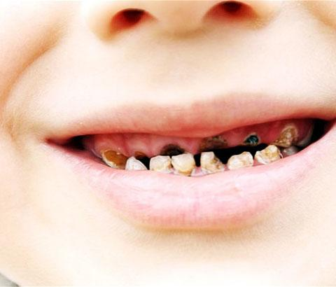 Hundreds of children as young as six having rotten teeth pulled in Cornwall